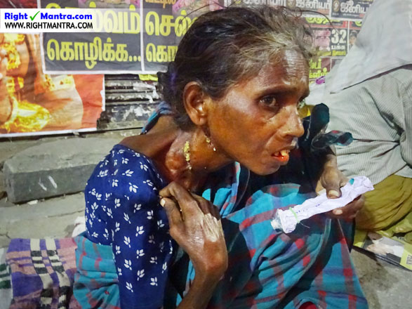 Leprosy Victims 4